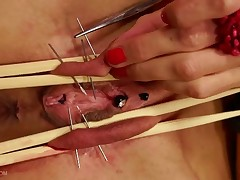 First Queensnake sews her own pussy using 10 pieces of 1 mm gauge (18G) size..